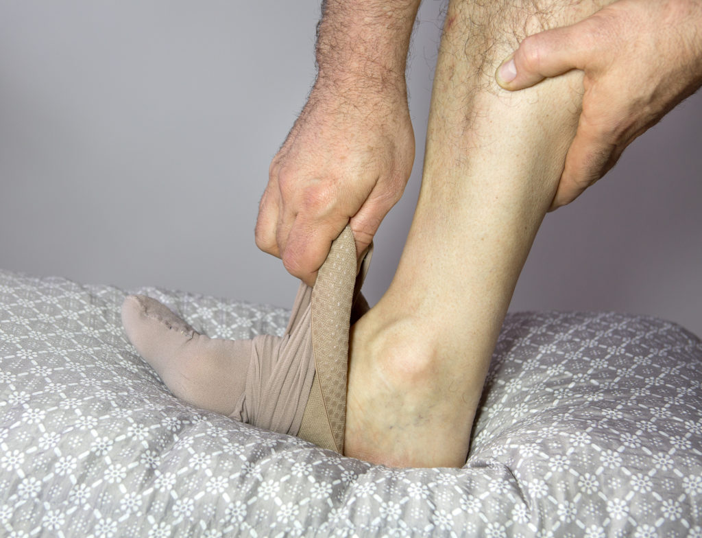 Leg Ulcers Treatment Clark Ky